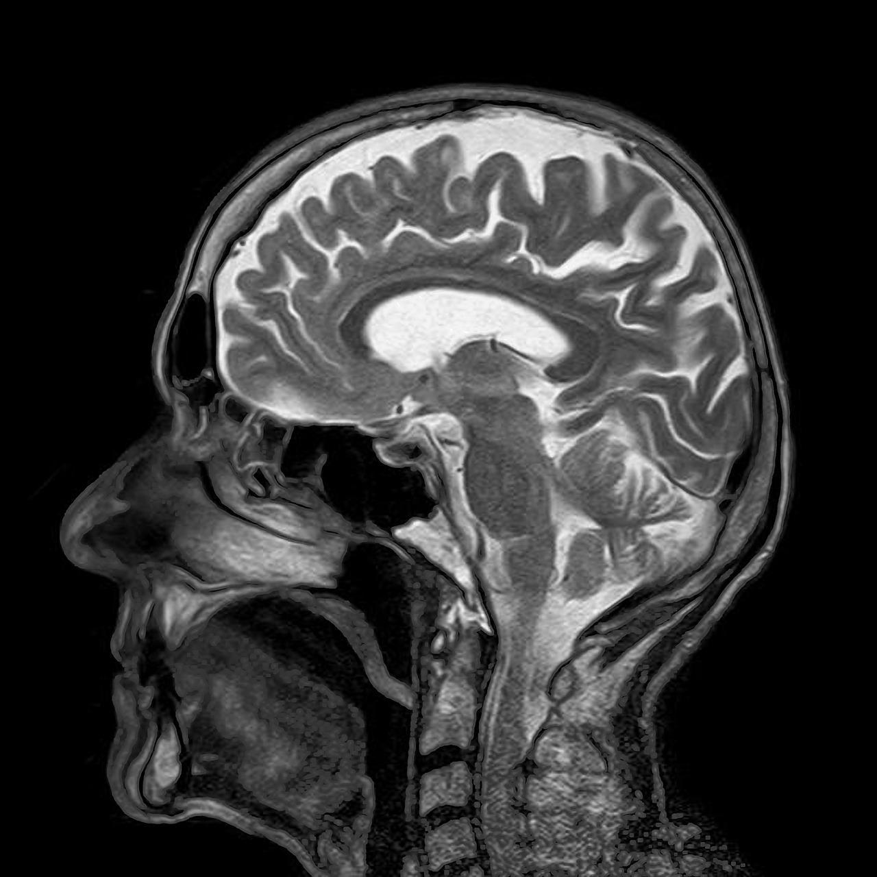 Zarywasz noce? Co dzieje się z twoim mózgiem?