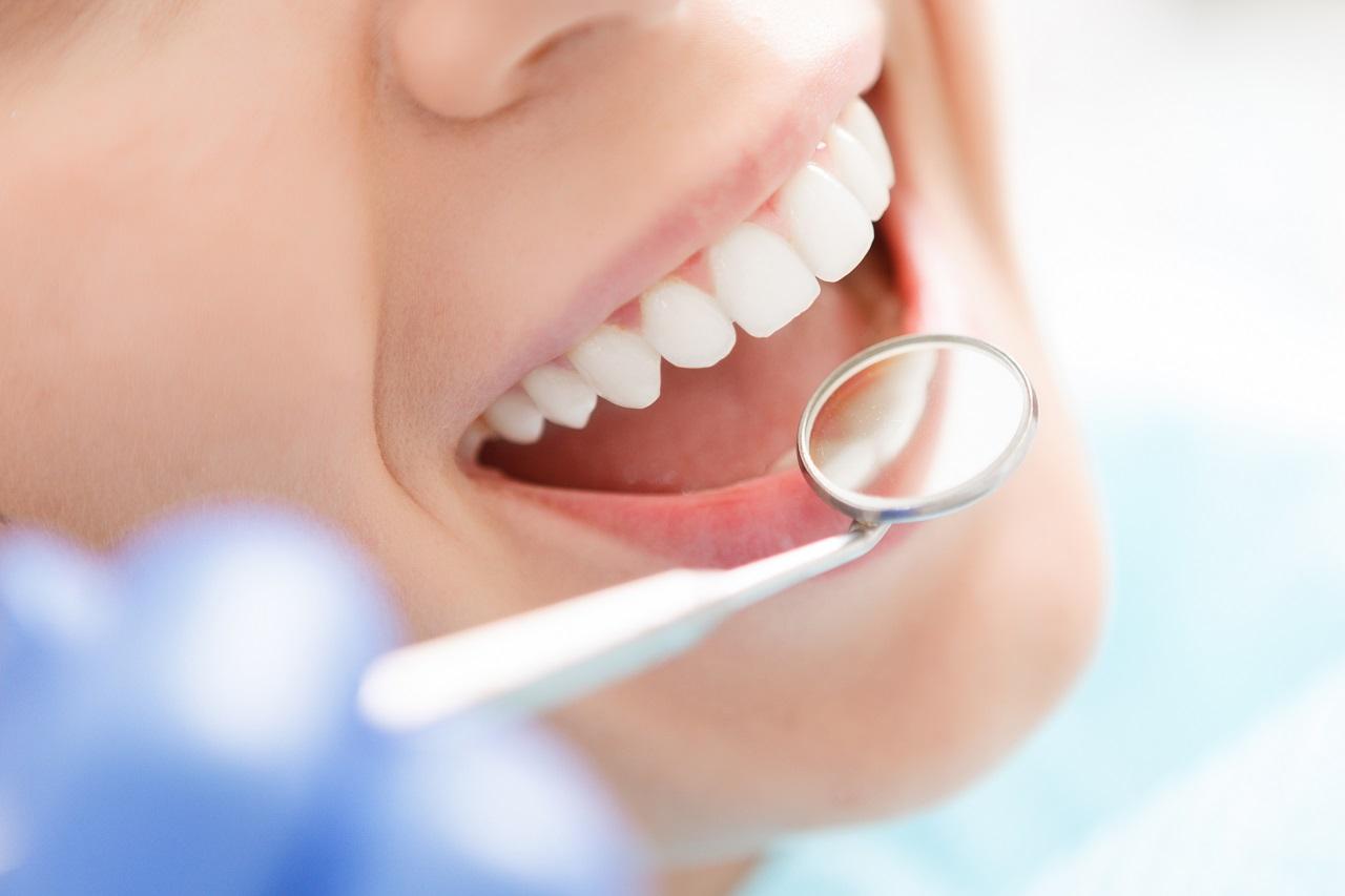Jak poprawić wygląd swoich zębów?